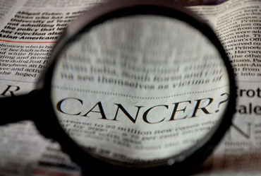 Cancer Tissue Help Patients Cut Treatment Cost