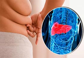 Being Overweight: Leads To Several Cancers