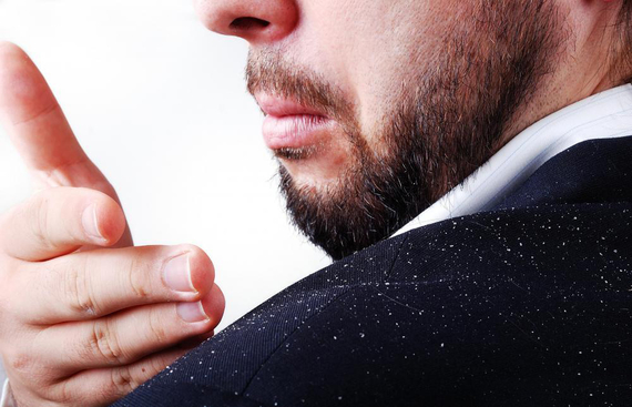 Causes of Dandruff and Simple idea to get Rid of this Problem