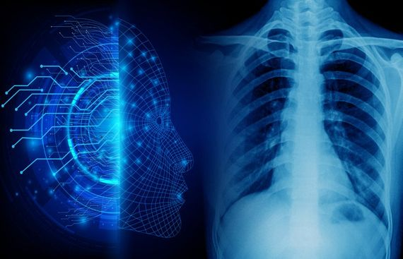 AI predicts Long-Term Mortality from Chest X-ray Data